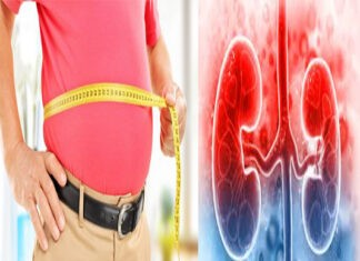 Obesity is the cause of Kidney Disease